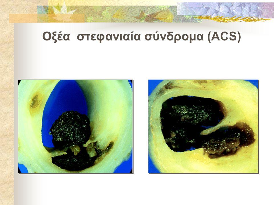 Οξέα στεφανιαία σύνδρομα (ACS)