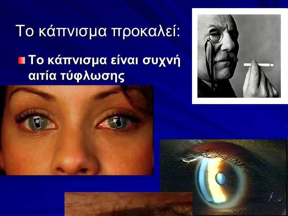 Το κάπνισμα προκαλεί: Το κάπνισμα είναι συχνή αιτία τύφλωσης