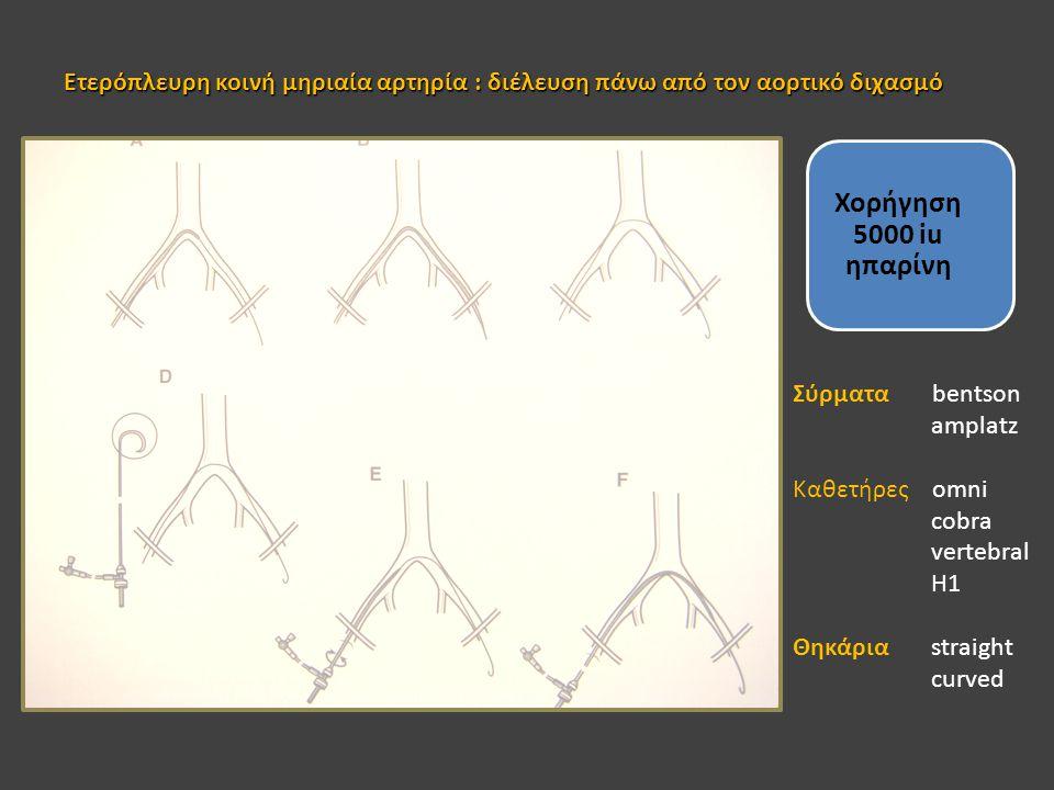 Ετερόπλευρη κοινή μηριαία αρτηρία : διέλευση πάνω από τον αορτικό διχασμό Χορήγηση 5000 iu ηπαρίνη Σύρματα bentson amplatz Καθετήρες omni cobra verteb