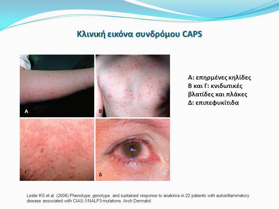 Κλινική εικόνα συνδρόμου CAPS Α: επηρμένες κηλίδες Β και Γ: κνιδωτικές βλατίδες και πλάκες Δ: επιπεφυκίτιδα Α Γ Β Δ Β Leslie KS et al.