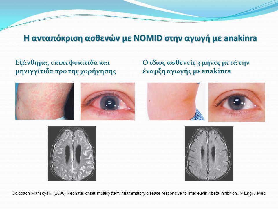 Η ανταπόκριση ασθενών με NOMID στην αγωγή με anakinra Εξάνθημα, επιπεφυκίτιδα και μηνιγγίτιδα προ της χορήγησης Ο ίδιος ασθενείς 3 μήνες μετά την έναρ