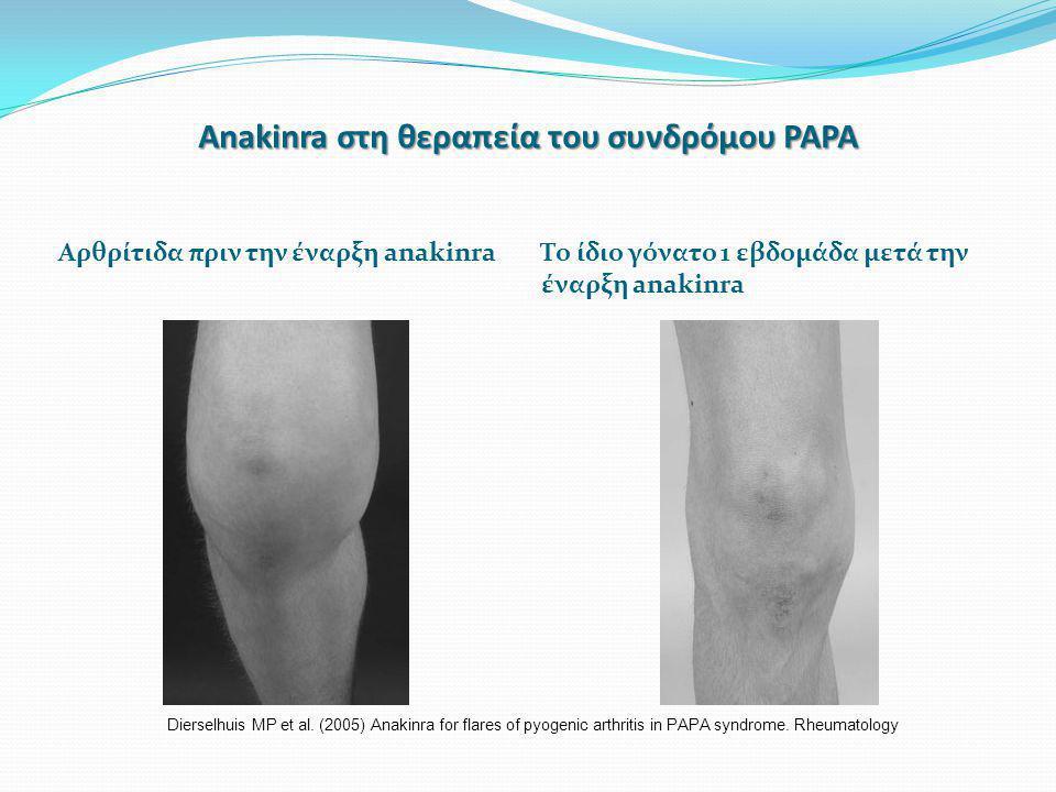 Anakinra στη θεραπεία του συνδρόμου PAPA Αρθρίτιδα πριν την έναρξη anakinra Το ίδιο γόνατο 1 εβδομάδα μετά την έναρξη anakinra Dierselhuis MP et al.