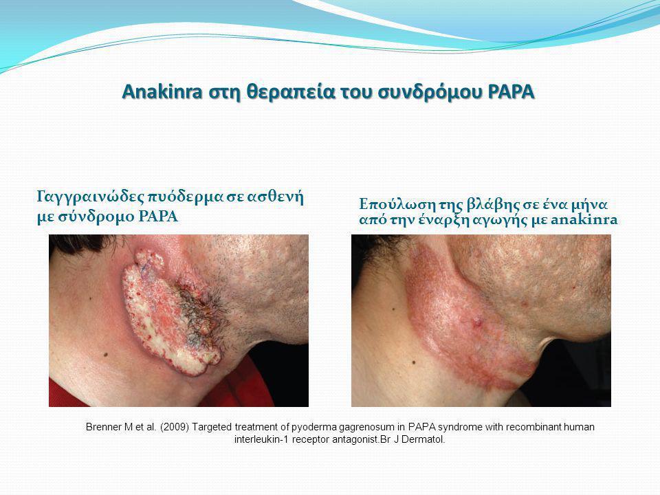 Anakinra στη θεραπεία του συνδρόμου PAPA Γαγγραινώδες πυόδερμα σε ασθενή με σύνδρομο PAPA Επούλωση της βλάβης σε ένα μήνα από την έναρξη αγωγής με ana