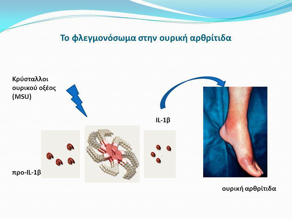 Το φλεγμονόσωμα στην ουρική αρθρίτιδα Κρύσταλλοι ουρικού οξέος (ΜSU) προ-IL-1β IL-1β ουρική αρθρίτιδα