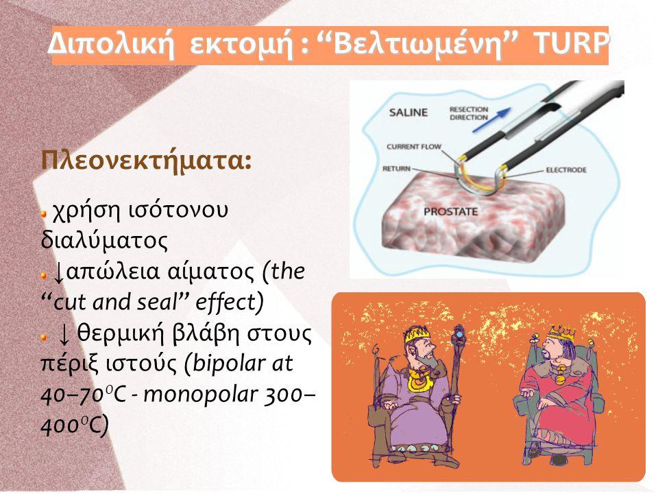 """Διπολική εκτομή : """"Βελτιωμένη"""" TURP Πλεονεκτήματα: χρήση ισότονου διαλύματος ↓ απώλεια αίματος (the """"cut and seal"""" effect) ↓ θερμική βλάβη στους πέριξ"""
