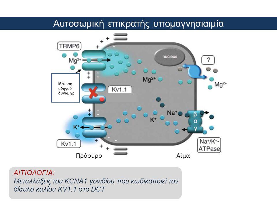 Αυτοσωμική επικρατής υπομαγνησιαιμία Μ Μείωση οδηγού δύναμης ΑίμαΠρόουρο ΑΙΤΙΟΛΟΓΙΑ: Μεταλλάξεις του KCNA1 γονιδίου που κωδικοποιεί τον δίαυλο καλίου