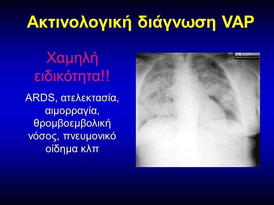 Ακτινολογική διάγνωση VAP Χαμηλή ειδικότητα!.
