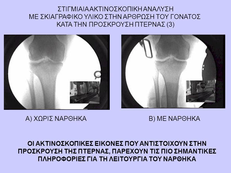 Β) ΜΕ ΝΑΡΘΗΚΑΑ) ΧΩΡΙΣ ΝΑΡΘΗΚΑ ΣΤΙΓΜΙΑΙΑ ΑΚΤΙΝΟΣΚΟΠΙΚΗ ΑΝΑΛΥΣΗ ΜΕ ΣΚΙΑΓΡΑΦΙΚΟ ΥΛΙΚΟ ΣΤΗΝ ΑΡΘΡΩΣΗ ΤΟΥ ΓΟΝΑΤΟΣ ΚΑΤΑ ΤΗΝ ΠΡΟΣΚΡΟΥΣΗ ΠΤΕΡΝΑΣ (3) ΟΙ ΑΚΤΙΝΟΣ