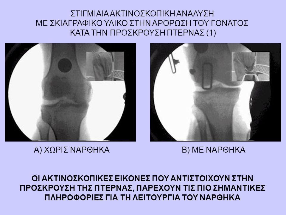 ΣΤΙΓΜΙΑΙΑ ΑΚΤΙΝΟΣΚΟΠΙΚΗ ΑΝΑΛΥΣΗ ΜΕ ΣΚΙΑΓΡΑΦΙΚΟ ΥΛΙΚΟ ΣΤΗΝ ΑΡΘΡΩΣΗ ΤΟΥ ΓΟΝΑΤΟΣ ΚΑΤΑ ΤΗΝ ΠΡΟΣΚΡΟΥΣΗ ΠΤΕΡΝΑΣ (1) Α) ΧΩΡΙΣ ΝΑΡΘΗΚΑΒ) ΜΕ ΝΑΡΘΗΚΑ ΟΙ ΑΚΤΙΝΟΣ