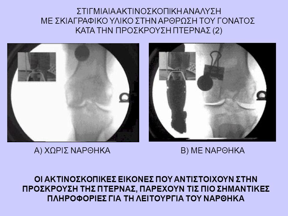 ΣΤΙΓΜΙΑΙΑ ΑΚΤΙΝΟΣΚΟΠΙΚΗ ΑΝΑΛΥΣΗ ΜΕ ΣΚΙΑΓΡΑΦΙΚΟ ΥΛΙΚΟ ΣΤΗΝ ΑΡΘΡΩΣΗ ΤΟΥ ΓΟΝΑΤΟΣ ΚΑΤΑ ΤΗΝ ΠΡΟΣΚΡΟΥΣΗ ΠΤΕΡΝΑΣ (2) Α) ΧΩΡΙΣ ΝΑΡΘΗΚΑΒ) ΜΕ ΝΑΡΘΗΚΑ ΟΙ ΑΚΤΙΝΟΣ
