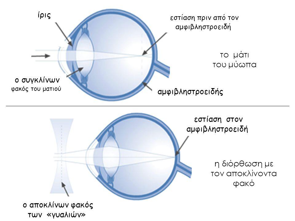 το μάτι του μύωπα η διόρθωση με τον αποκλίνοντα φακό ίρις ο συγκλίνων φακός του ματιού αμφιβληστροειδής εστίαση πριν από τον αμφιβληστροειδή ο αποκλίν