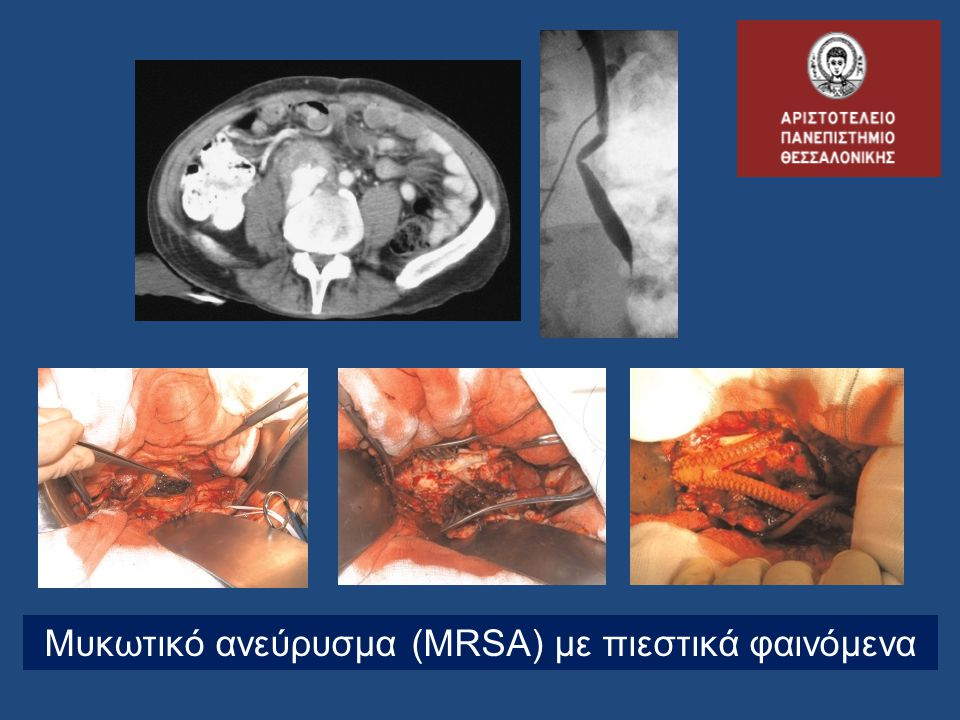 Μυκωτικό ανεύρυσμα (MRSA) με πιεστικά φαινόμενα