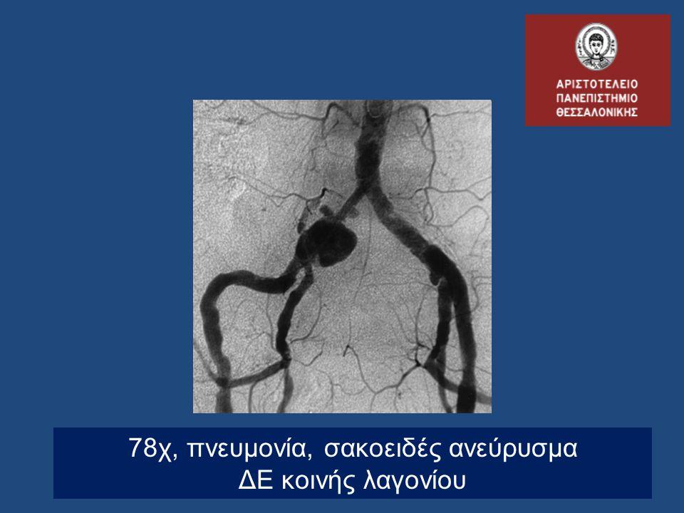 78χ, πνευμονία, σακοειδές ανεύρυσμα ΔΕ κοινής λαγονίου