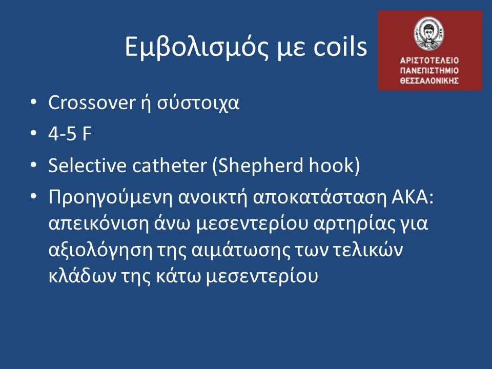 Εμβολισμός με coils • Crossover ή σύστοιχα • 4-5 F • Selective catheter (Shepherd hook) • Προηγούμενη ανοικτή αποκατάσταση ΑΚΑ: απεικόνιση άνω μεσεντε