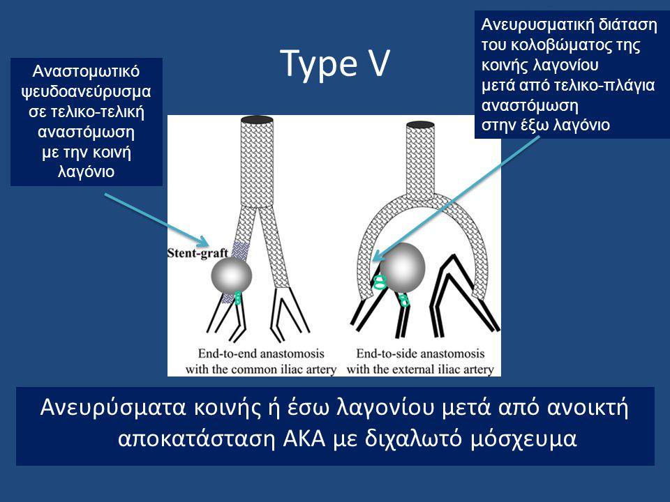 Type V Ανευρύσματα κοινής ή έσω λαγονίου μετά από ανοικτή αποκατάσταση ΑΚΑ με διχαλωτό μόσχευμα Αναστομωτικό ψευδοανεύρυσμα σε τελικο-τελική αναστόμωσ