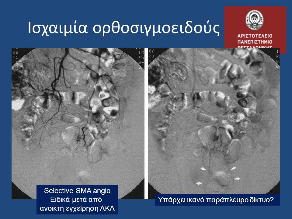 Ισχαιμία ορθοσιγμοειδούς Selective SMA angio Ειδικά μετά από ανοικτή εγχείρηση ΑΚΑ Υπάρχει ικανό παράπλευρο δίκτυο?