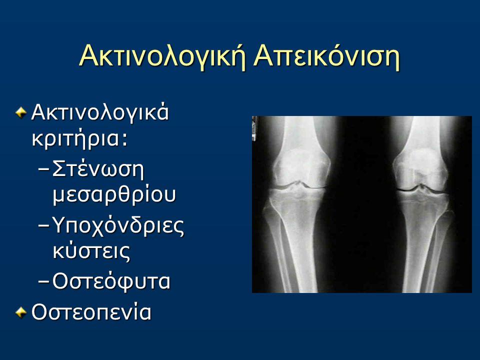 Ακτινολογική Απεικόνιση Ακτινολογικά κριτήρια: –Στένωση μεσαρθρίου –Υποχόνδριες κύστεις –Οστεόφυτα Οστεοπενία