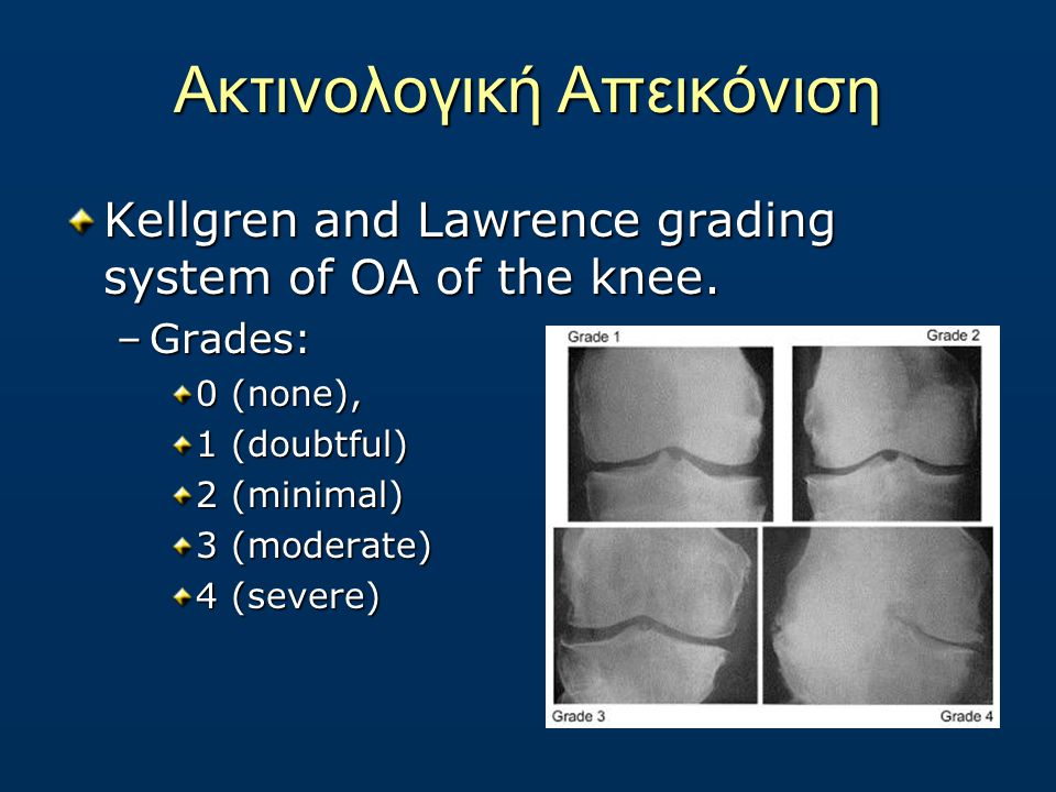 Ακτινολογική Απεικόνιση Kellgren and Lawrence grading system of OA of the knee.