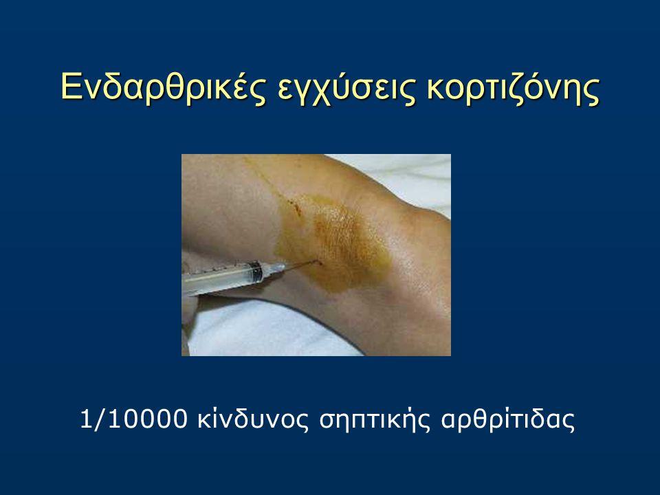 Ενδαρθρικές εγχύσεις κορτιζόνης 1/10000 κίνδυνος σηπτικής αρθρίτιδας