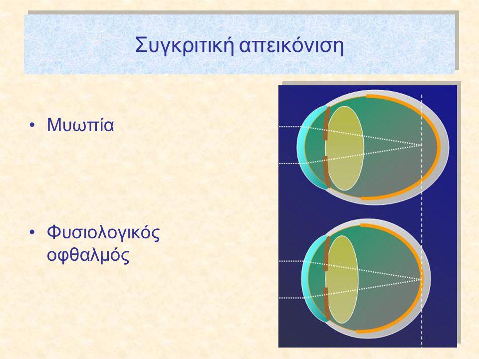 Συγκριτική απεικόνιση •Μυωπία •Φυσιολογικός οφθαλμός