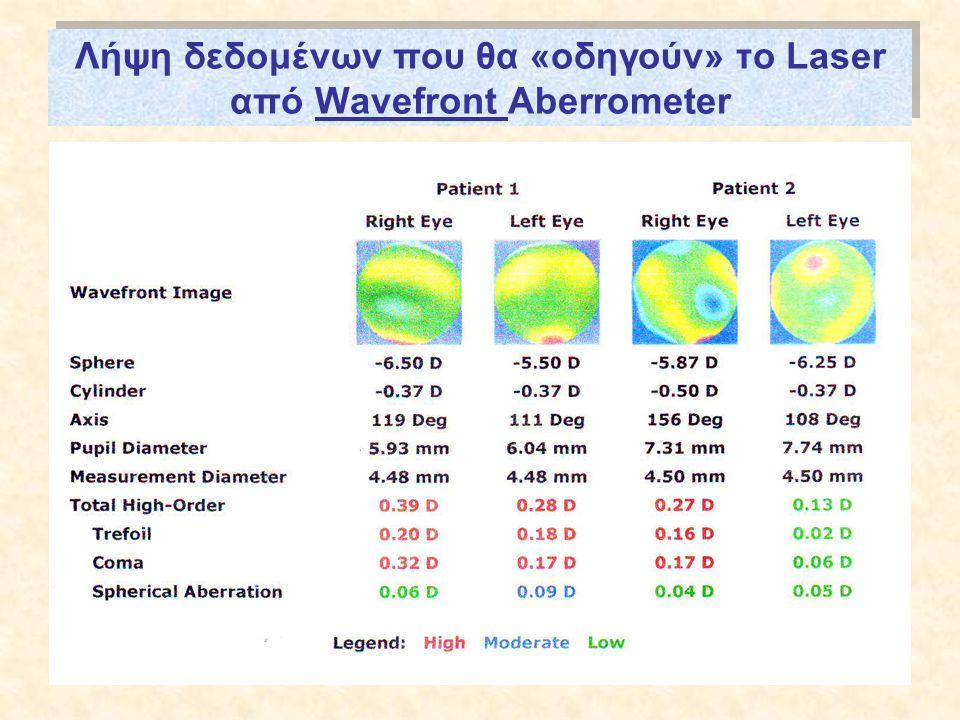 Λήψη δεδομένων που θα «οδηγούν» το Laser από Wavefront Aberrometer