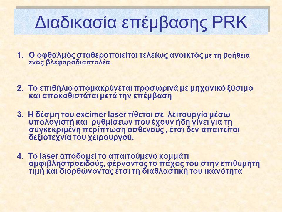 Διαδικασία επέμβασης PRK 1.Ο οφθαλμός σταθεροποιείται τελείως ανοικτός με τη βοήθεια ενός βλεφαροδιαστολέα.