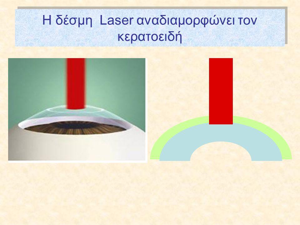 Η δέσμη Laser αναδιαμορφώνει τον κερατοειδή