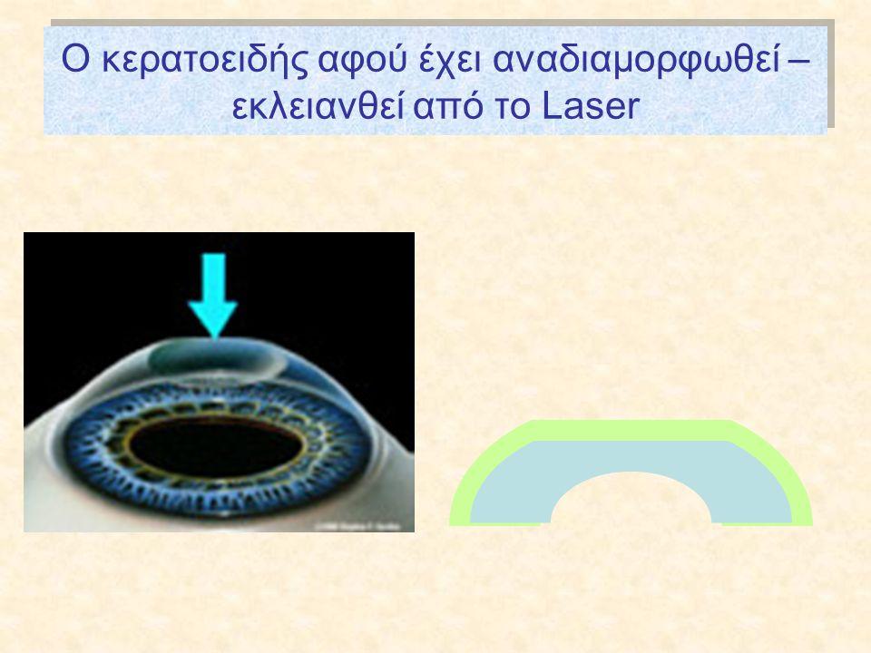 O κερατοειδής αφού έχει αναδιαμορφωθεί – εκλειανθεί από το Laser
