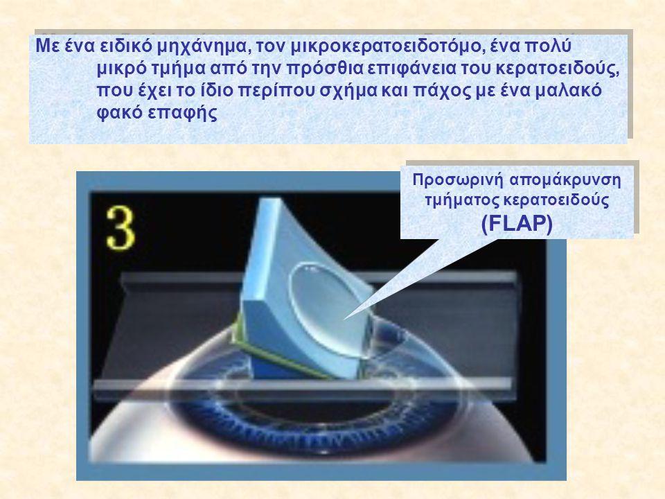 Με ένα ειδικό μηχάνημα, τον μικροκερατοειδοτόμο, ένα πολύ μικρό τμήμα από την πρόσθια επιφάνεια του κερατοειδούς, που έχει το ίδιο περίπου σχήμα και πάχος με ένα μαλακό φακό επαφής Προσωρινή απομάκρυνση τμήματος κερατοειδούς (FLAP)
