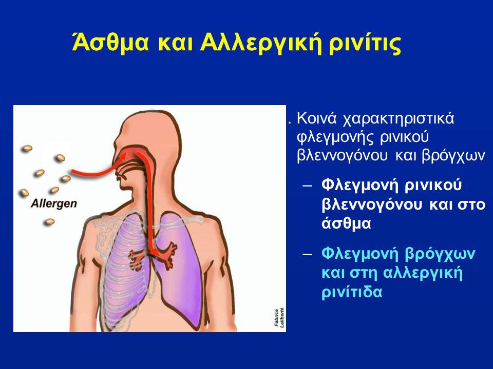Άσθμα και Αλλεργική ρινίτις 1.Κοινά χαρακτηριστικά φλεγμονής ρινικού βλεννογόνου και βρόγχων –Φλεγμονή ρινικού βλεννογόνου και στο άσθμα –Φλεγμονή βρό