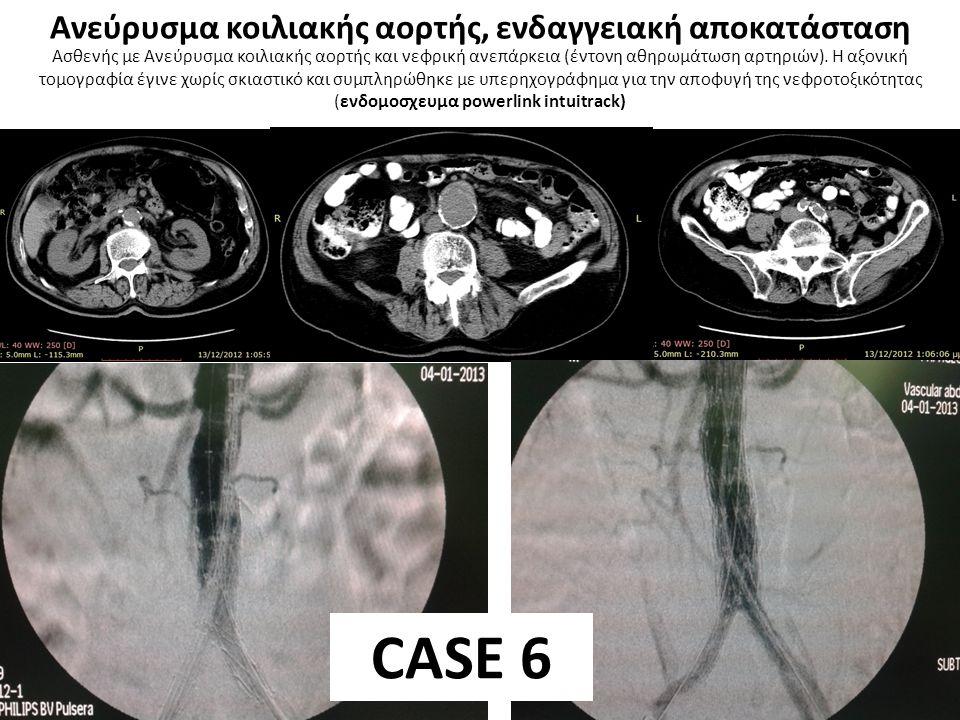 Ασθενής με Ανεύρυσμα κοιλιακής αορτής και ιδανικού μήκους κεντρική ζώνη στήριξης (ενδομοσχευμα Excluder Gore) CASE 7 Ανεύρυσμα κοιλιακής αορτής, ενδαγγειακή αποκατάσταση