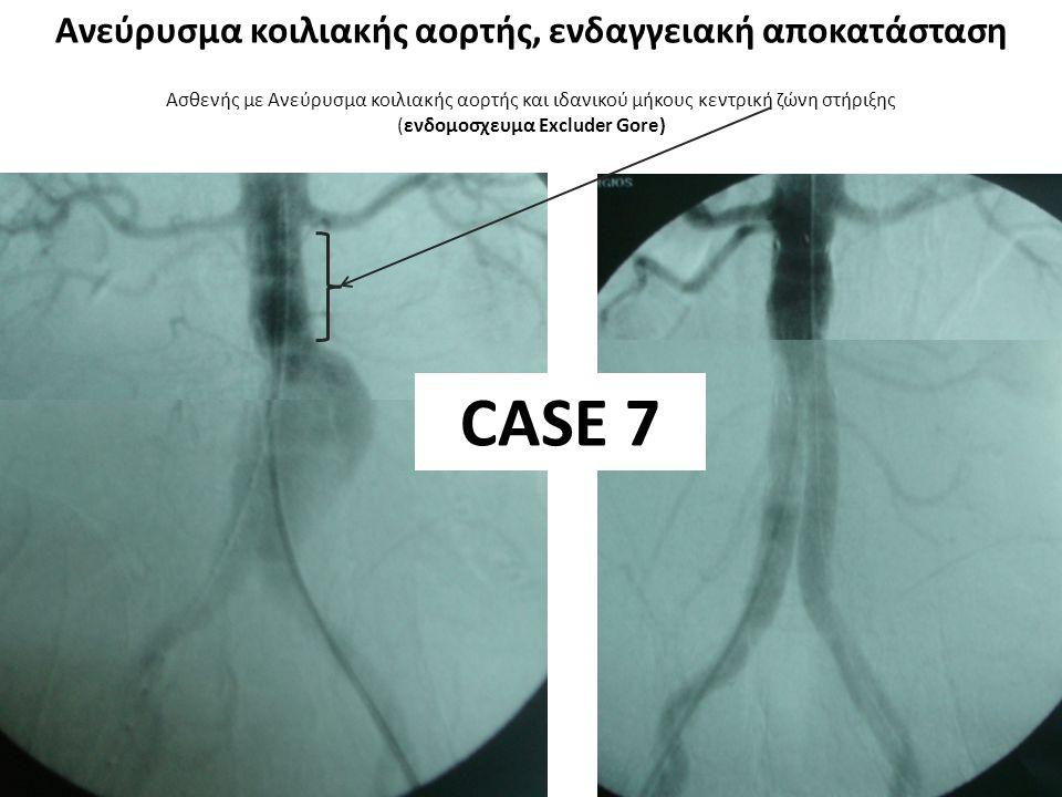 Ασθενής με Ανεύρυσμα κοιλιακής αορτής και ιδανικού μήκους κεντρική ζώνη στήριξης (ενδομοσχευμα Excluder Gore) CASE 8 Ανεύρυσμα κοιλιακής αορτής, ενδαγγειακή αποκατάσταση