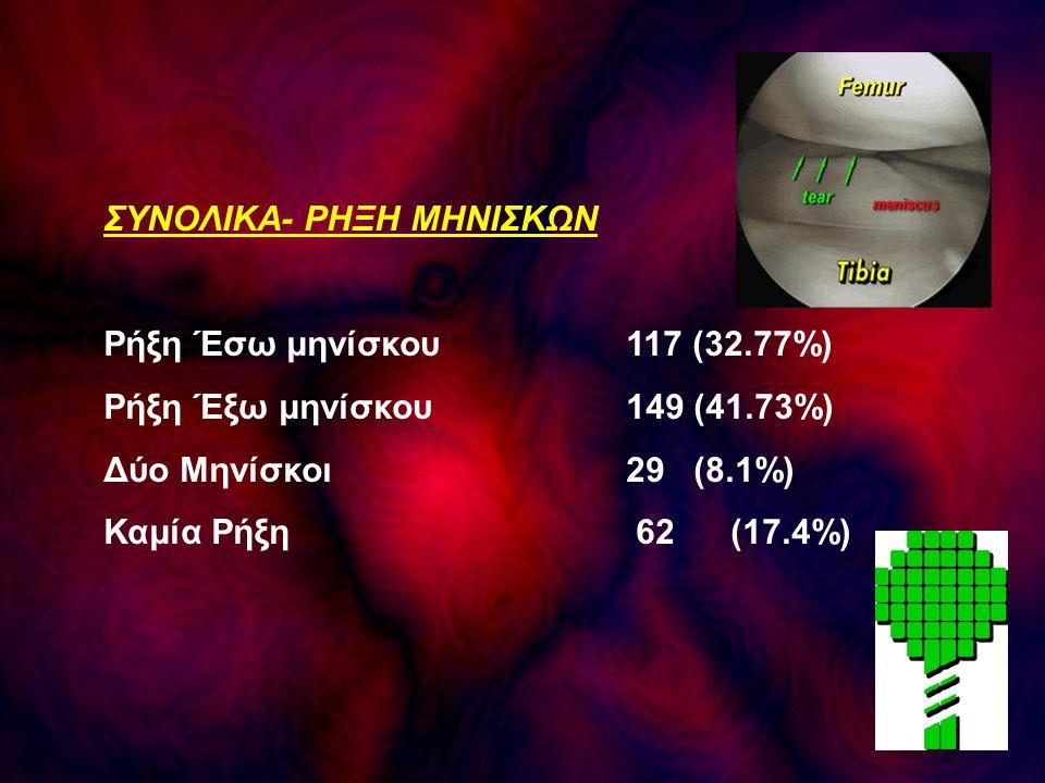 ΣΥΝΟΛΙΚΑ- ΡΗΞΗ ΜΗΝΙΣΚΩΝ Ρήξη Έσω μηνίσκου117 (32.77%) Ρήξη Έξω μηνίσκου 149 (41.73%) Δύο Μηνίσκοι29 (8.1%) Καμία Ρήξη 62(17.4%)