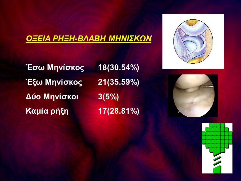 ΟΞΕΙΑ ΡΗΞΗ-ΒΛΑΒΗ ΜΗΝΙΣΚΩΝ Έσω Μηνίσκος18(30.54%) Έξω Μηνίσκος21(35.59%) Δύο Μηνίσκοι3(5%) Καμία ρήξη17(28.81%)