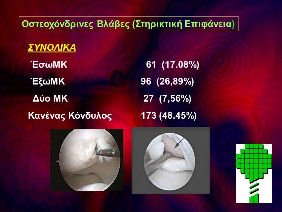 ΣΥΝΟΛΙΚΑ ΈσωΜΚ 61 (17.08%) ΈξωΜΚ 96 (26,89%) Δύο ΜΚ 27 (7,56%) Κανένας Κόνδυλος 173 (48.45%) Οστεοχόνδρινες Βλάβες (Στηρικτική Επιφάνεια)