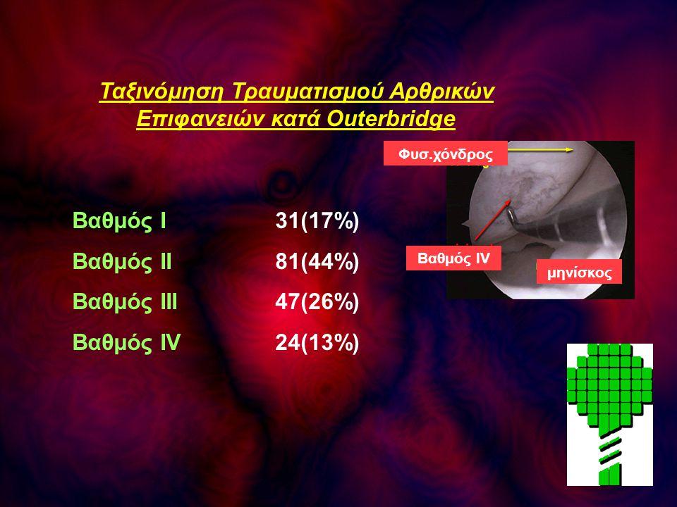 Ταξινόμηση Τραυματισμού Αρθρικών Επιφανειών κατά Outerbridge Βαθμός Ι31(17%) Βαθμός ΙΙ81(44%) Βαθμός ΙΙΙ47(26%) Βαθμός ΙV24(13%) Φυσ.χόνδρος Βαθμός ΙV