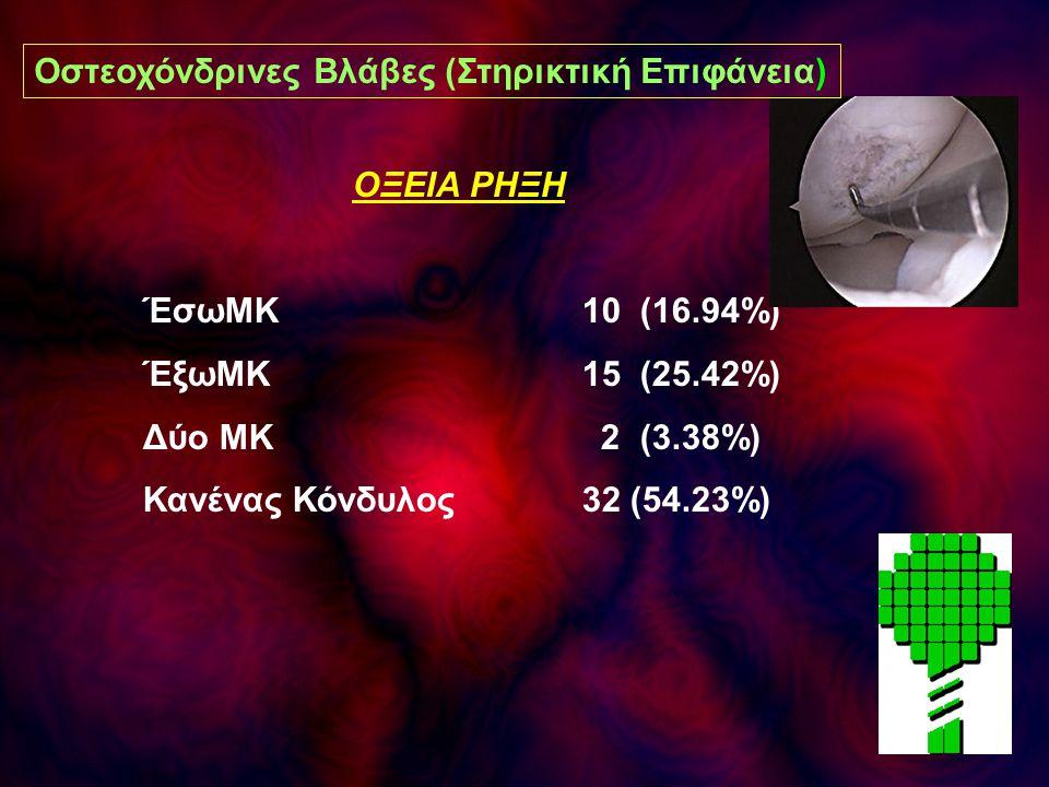 ΟΞΕΙΑ ΡΗΞΗ ΈσωΜΚ 10 (16.94%) ΈξωΜΚ 15 (25.42%) Δύο ΜΚ 2 (3.38%) Κανένας Κόνδυλος 32 (54.23%) Οστεοχόνδρινες Βλάβες (Στηρικτική Επιφάνεια)