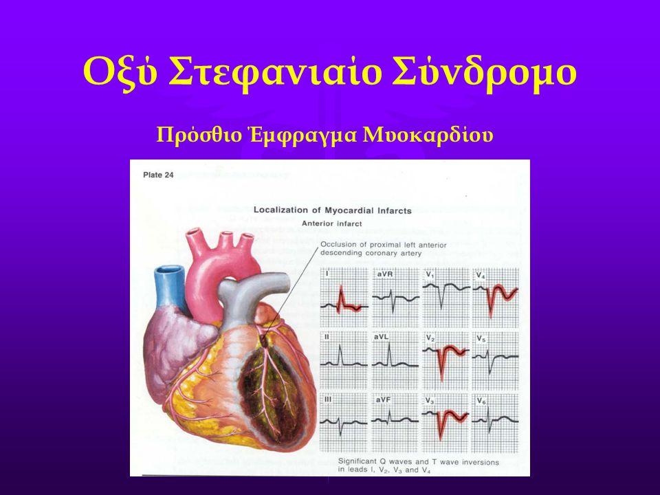 Οξύ Στεφανιαίο Σύνδρομο Πρόσθιο Έμφραγμα Μυοκαρδίου