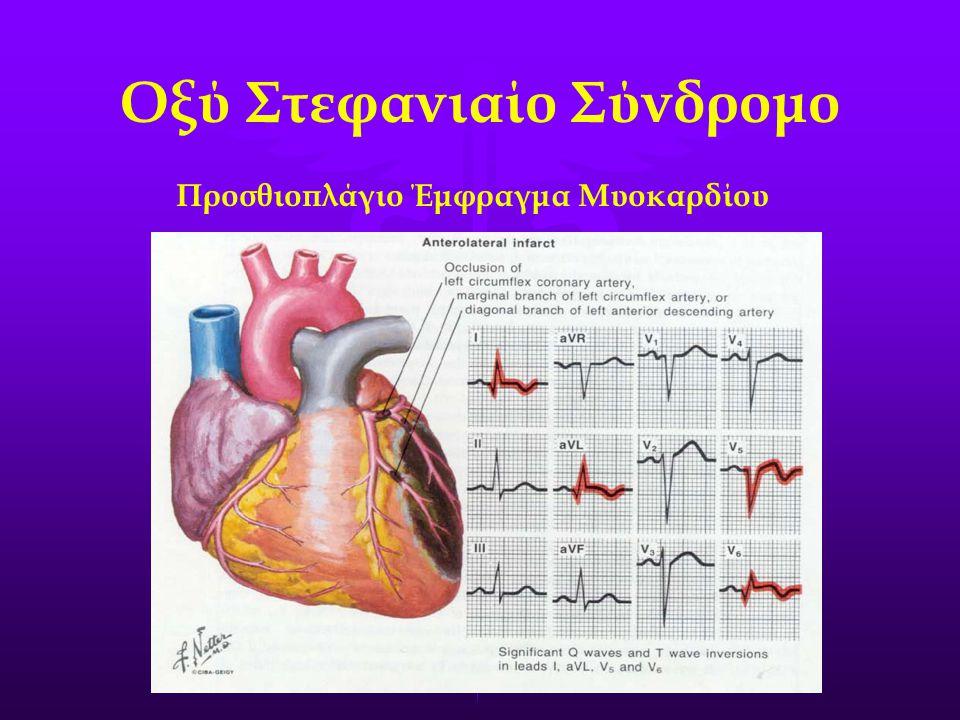 Προσθιοπλάγιο Έμφραγμα Μυοκαρδίου Οξύ Στεφανιαίο Σύνδρομο