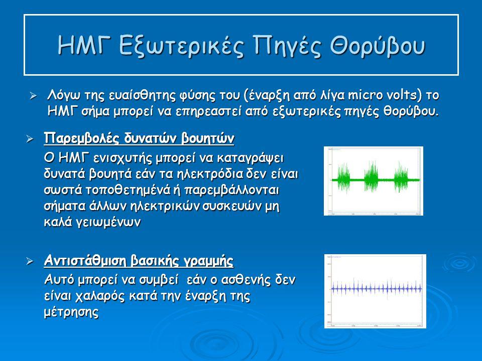 ΗΜΓ Εξωτερικές Πηγές Θορύβου  Λόγω της ευαίσθητης φύσης του (έναρξη από λίγα micro volts) το ΗΜΓ σήμα μπορεί να επηρεαστεί από εξωτερικές πηγές θορύβου.