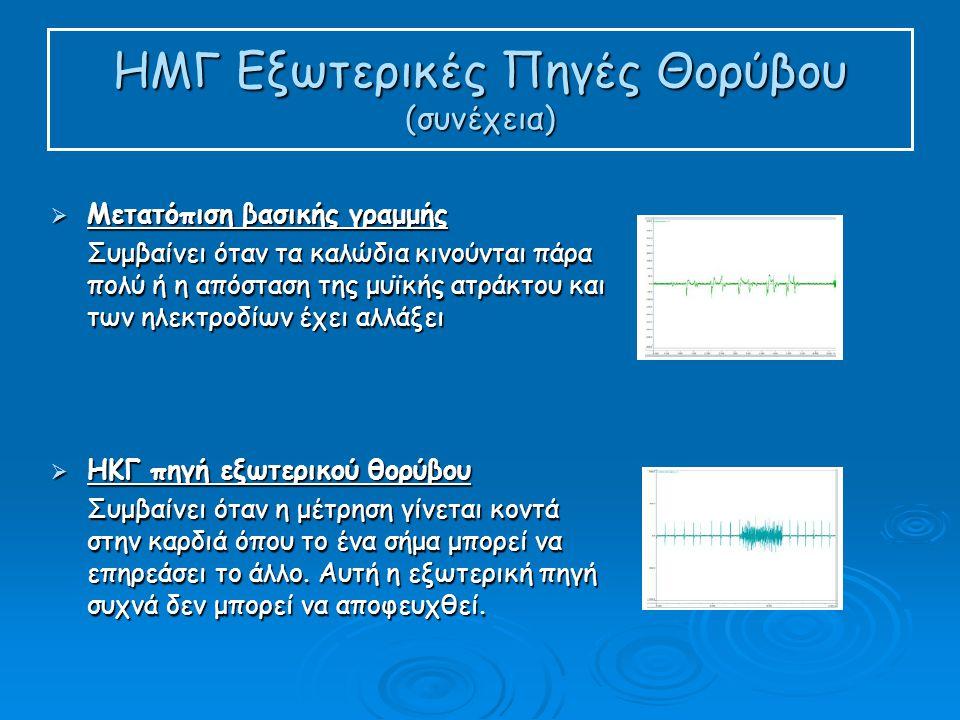 ΗΜΓ Εξωτερικές Πηγές Θορύβου (συνέχεια)  Μετατόπιση βασικής γραμμής Συμβαίνει όταν τα καλώδια κινούνται πάρα πολύ ή η απόσταση της μυϊκής ατράκτου και των ηλεκτροδίων έχει αλλάξει  ΗΚΓ πηγή εξωτερικού θορύβου Συμβαίνει όταν η μέτρηση γίνεται κοντά στην καρδιά όπου το ένα σήμα μπορεί να επηρεάσει το άλλο.