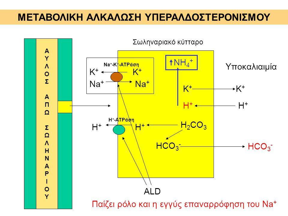 ΜΕΤΑΒΟΛΙΚΗ ΑΛΚΑΛΩΣΗ ΥΠΕΡΑΛΔΟΣΤΕΡΟΝΙΣΜΟΥ ΑΥΛΟΣΑΠΩΣΩΛΗΝΑΡΙΟΥΑΥΛΟΣΑΠΩΣΩΛΗΝΑΡΙΟΥ Σωληναριακό κύτταρο Υποκαλιαιμία Κ+Κ+ Κ+Κ+ Η+Η+ Η+Η+ ALD Η+Η+ Η+Η+ H + -A