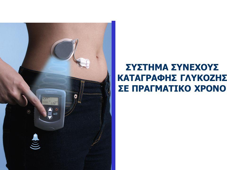 ΕΞΥΠΝΕΣ ΑΝΤΛΙΕΣ (Smart Pumps) • Περιέχουν ένα προαιρετικό πρόγραμμα, το οποίο ανάλογα με την τιμή της γλυκόζης υπολογίζει αυτόματα τη bolus δόση που π