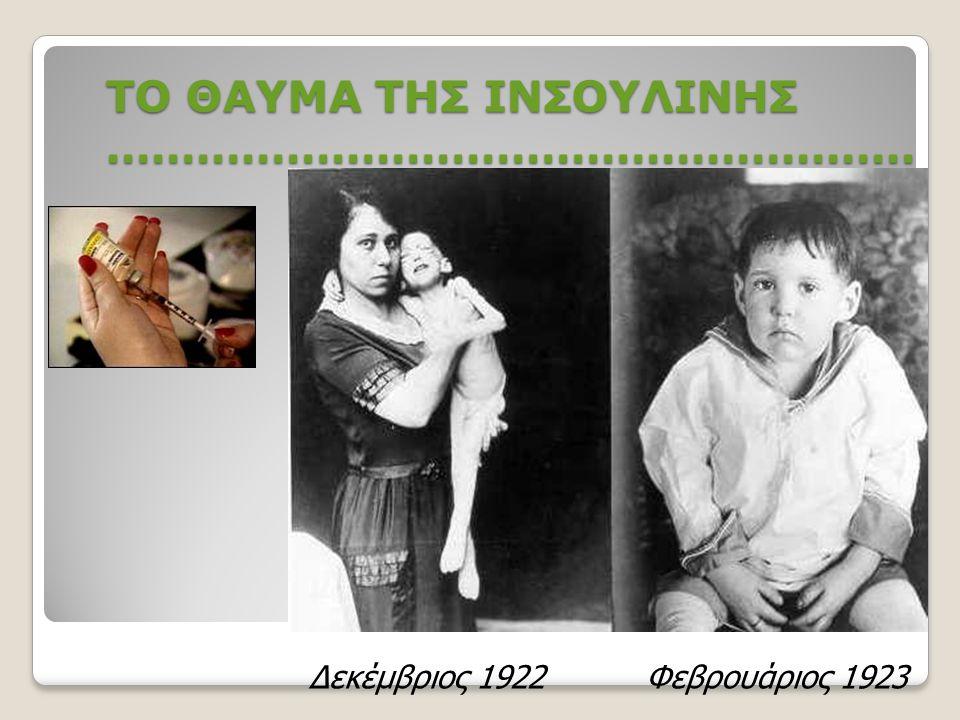 ΙΣΤΟΡΙΑ ΙΝΣΟΥΛΙΝΗΣ (ΙΙ) 1922- άρχισαν τα πειράματα στους ανθρώπους 1958- η δομή της ινσουλίνης προσδιορίστηκε από τον καθηγητή Frederick Sanger ( Camb