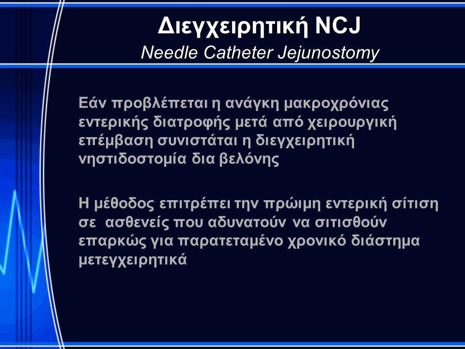 Διεγχειρητική NCJ Needle Catheter Jejunostomy Εάν προβλέπεται η ανάγκη μακροχρόνιας εντερικής διατροφής μετά από χειρουργική επέμβαση συνιστάται η διε