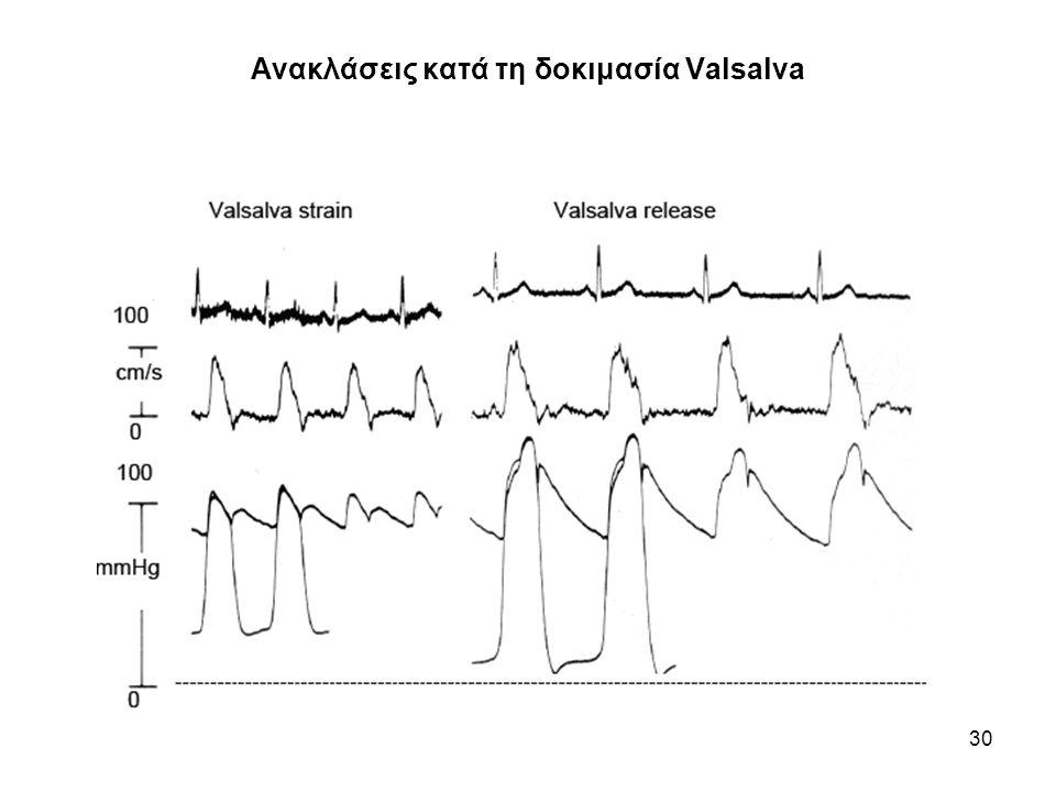 31 Εμπέδηση εισόδου κατά την δοκιμασία Valsalva