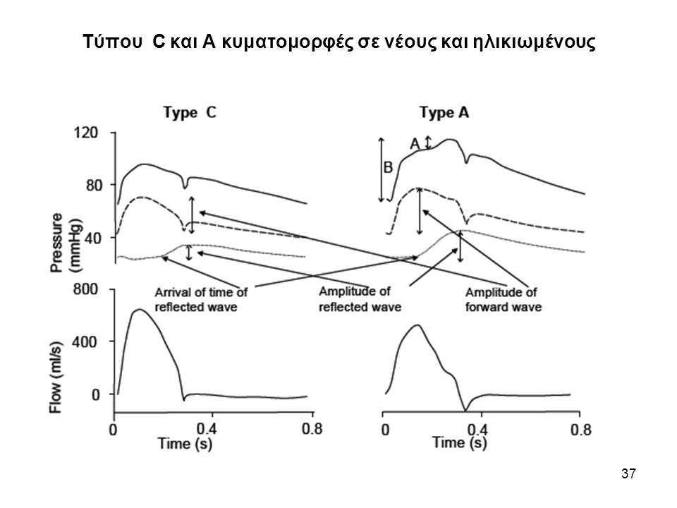 Επίδραση των αγγειοδιασταλτικών και αγγειοσυσταλτικών στη μορφή των παλμών πίεσης και παροχής λόγω των ανακλάσεων 38 Μέτρηση: κόκκινη γραμμή Μπροστά κύμα: μπλε γραμμή Πίσω κύμα: πράσινη γραμμή