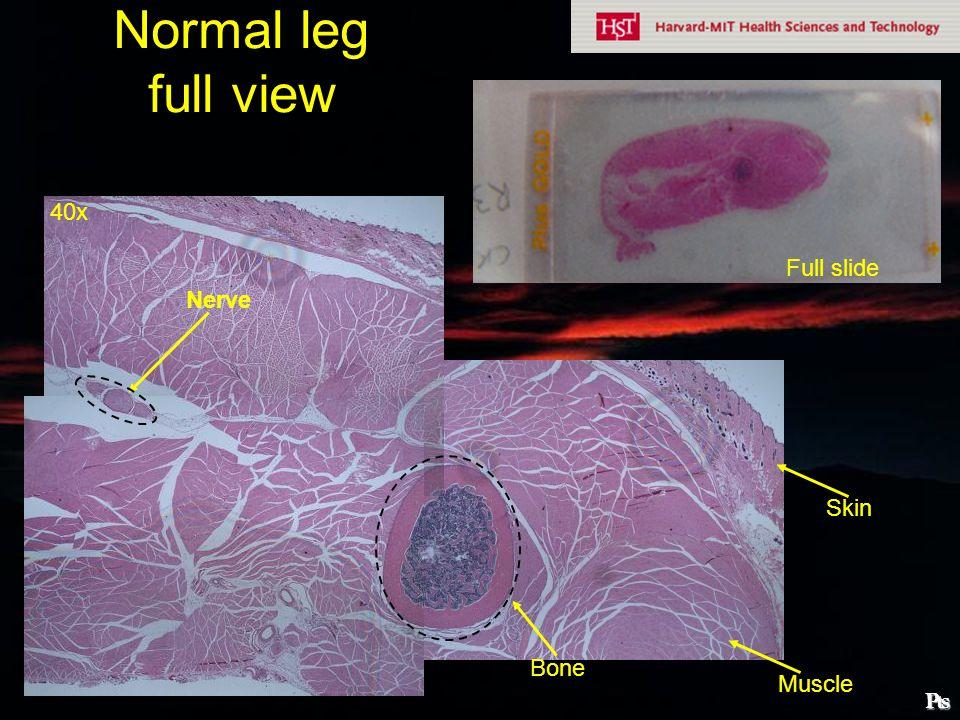 Normal bone trabeculae Bone marrow Cortical bone Thin layer of cells = parenchyma 40x 100x Bone marrow Cortical bone ₧