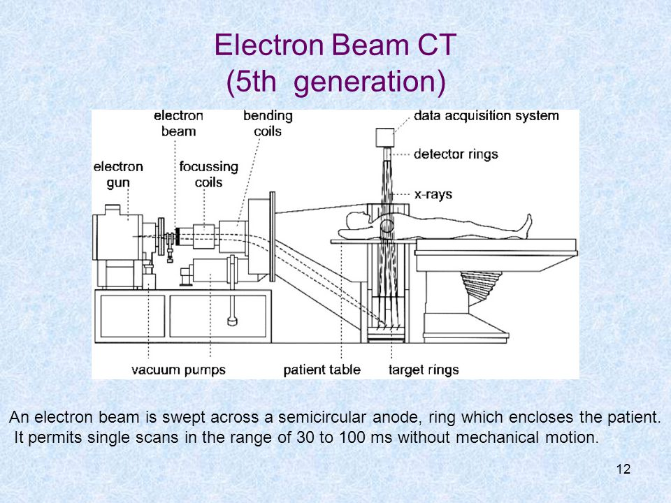 Electron Beam CT (5th generation) 12 An electron beam is swept across a semicircular anode, ring which encloses the patient. It permits single scans i