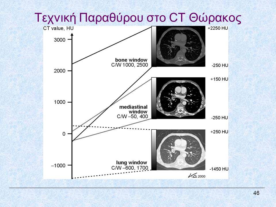 Τεχνική Παραθύρου στο CT Θώρακος 46